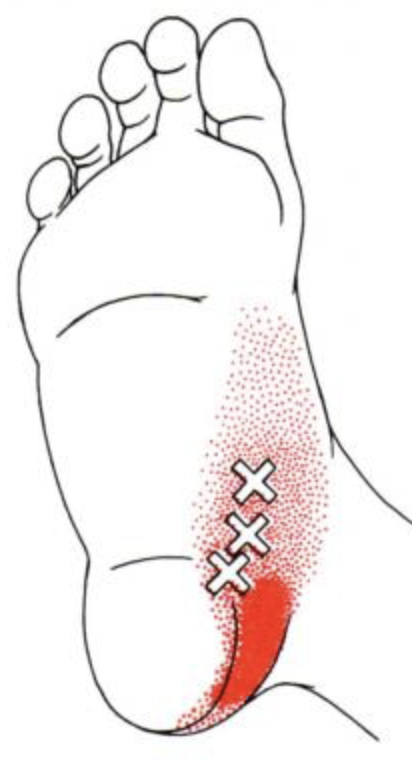 foot with pain indication