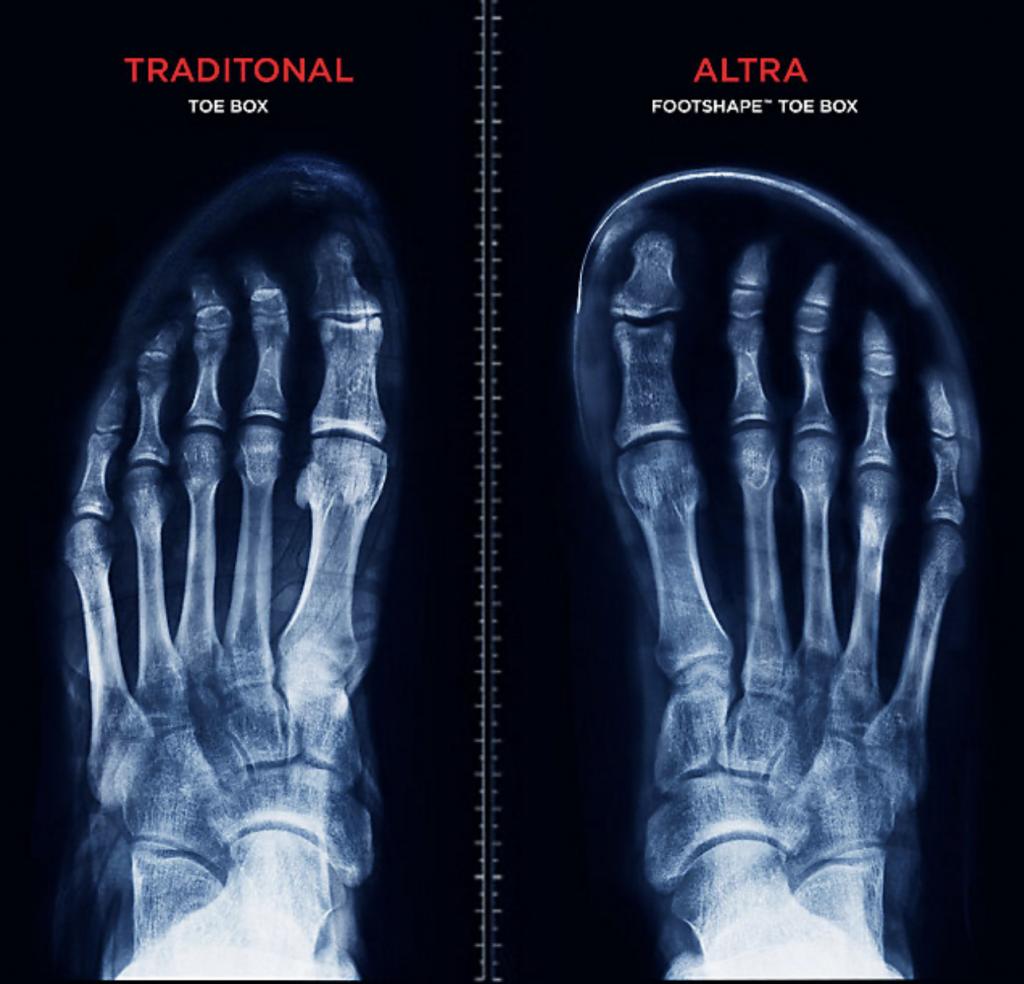 X-ray showing a wide toe box shoe vs normal shoe.